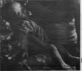 Many Babies Die in Nepal
